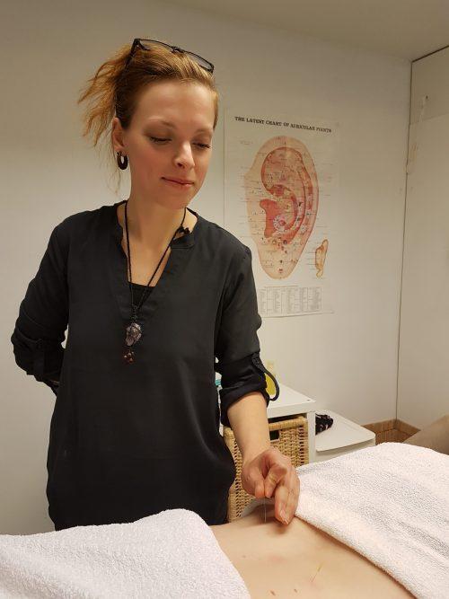 akupunktio helsinki